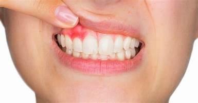 Заговор от зубной боли: читать самому, как снять симптом
