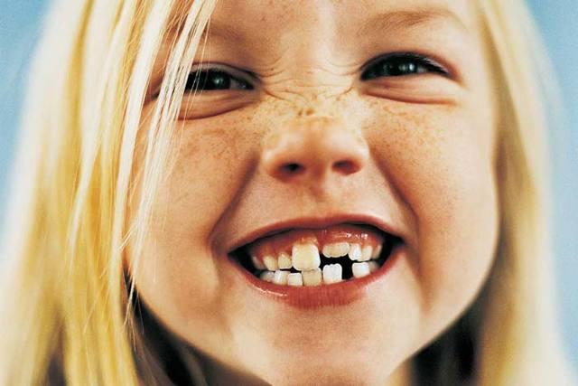 Выпал первый молочный зуб: что с ним делать, поверья и приметы