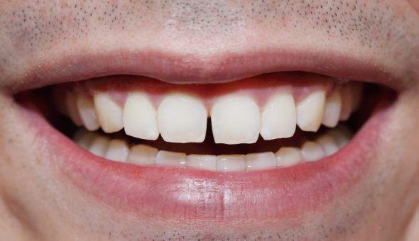 Щербинка между зубами: народные приметы и их значение