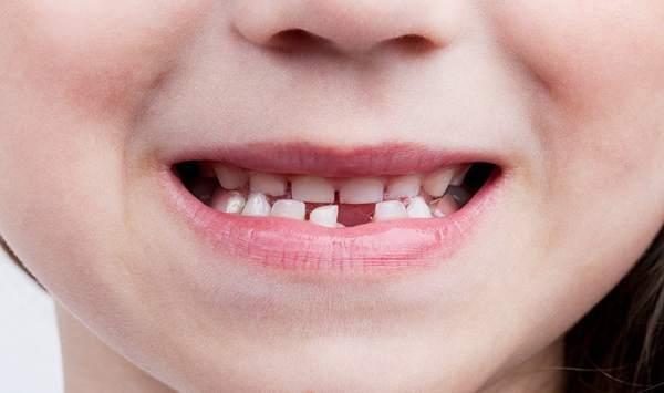 Что нужно говорить зубной фее когда выпал зуб