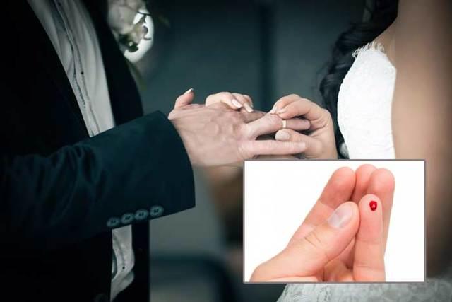 Уколоть палец иголкой, булавкой или шипом розы: значение примет